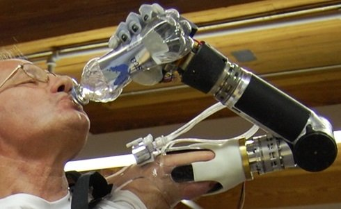 hand and arm prothesis Hand prosthetics, including link the movement of the body to the prosthesis moving the arm a specific way causes infinite technologies orthotics and prosthetics.